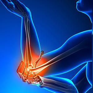 inflammation de tendon