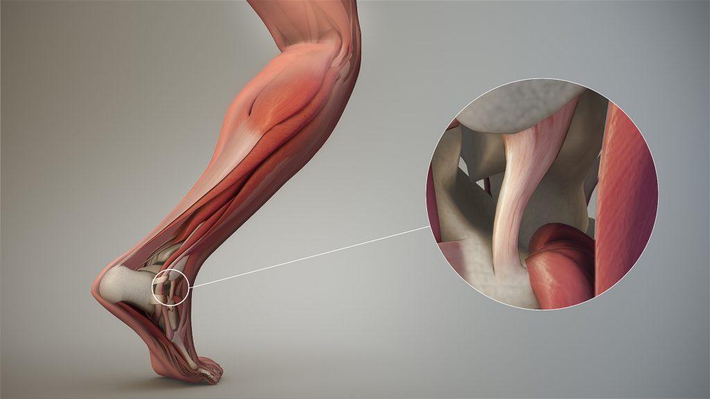 Dessin du ligament de la cheville qui est défaillant lors d'une entorse de la cheville