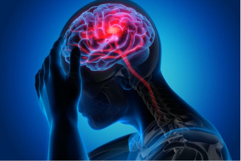 Image scanner du cerveau d'une personne ayant des céphalées