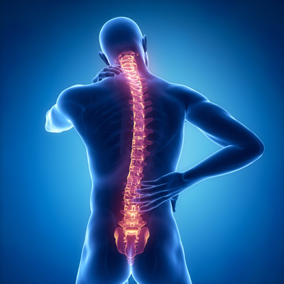 Image scanner d'une colonne vertébrale d'une personne qui souffre d'un mal de dos