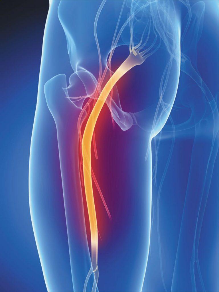 Image scanner qui fait apparaître le nerf sciatique en inflammation au niveau du fessier.